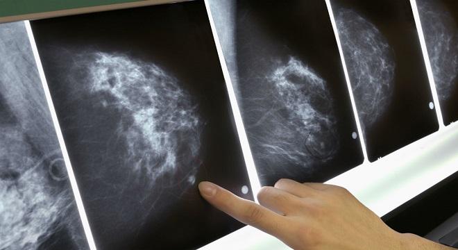 Óriási áttörés – több millió nő életét mentheti meg a legújabb tudományos felfedezés!